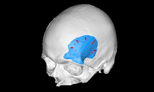 3D scanner SMARTTECH3D MED Human body scan